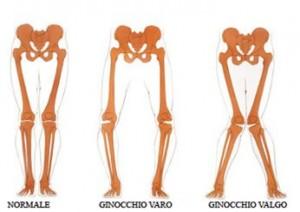 quali esercizi per ginocchia valghe