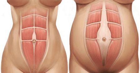 diastasi dei retti addominali