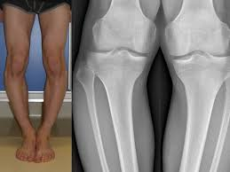 gambe storte ginocchia vare esempio