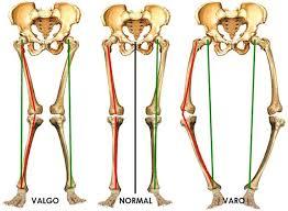esercizi ginnastica correttiva ginocchia storte